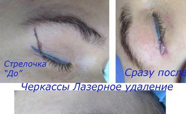 Анна Безуглая - Лазерное удаление тату/татуажа - фото 1