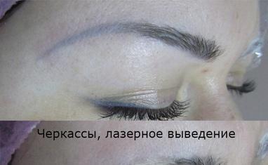 Анна Безуглая - Лазерное удаление тату/татуажа - фото 2