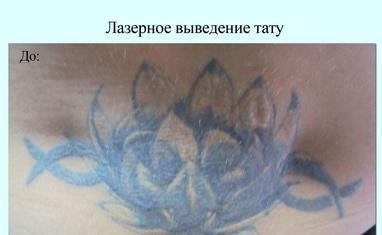 Анна Безуглая - Лазерное удаление тату/татуажа - фото 4