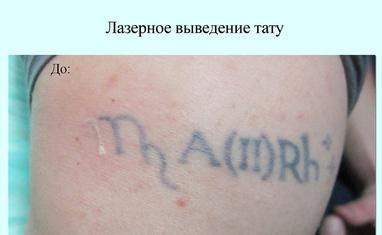 Анна Безуглая - Лазерное удаление тату/татуажа - фото 3