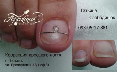 Nail-Практик - Лечение вросших ногтей - фото 2