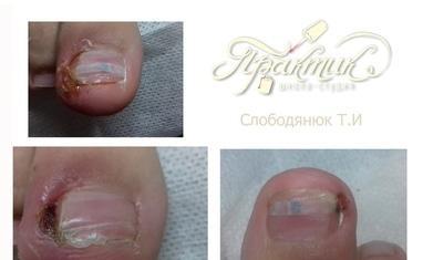 Nail-Практик - Лечение вросших ногтей - фото 3