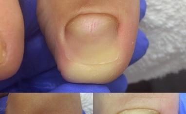Nail-Практик - Протезирование ногтей - фото 1