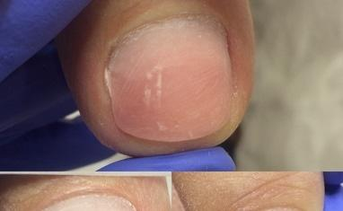 Nail-Практик - Протезирование ногтей - фото 2