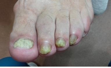Nail-Практик - Протезирование ногтей - фото 3