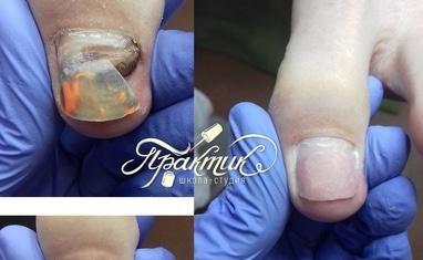 Nail-Практик - Протезирование ногтей - фото 4