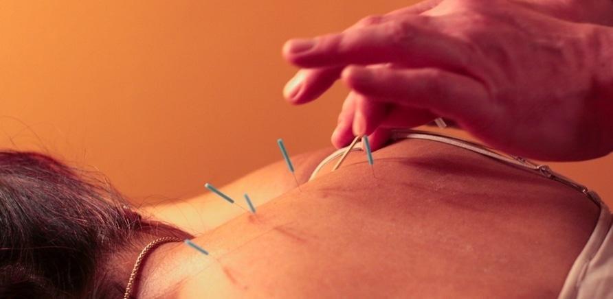 Лечение пиявками, иголками и улитками: черкасщане практикуют нетрадиционные медицинские процедуры