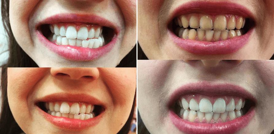"""Фото 1 - Результат осветления зубов """"PearlSmile"""""""