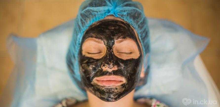 Фото 2 - Перед процедурою на шкіру наносять гель з карбоном