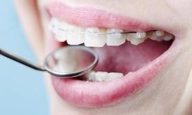 Статья '8 вопросов о брекетах к стоматологу'