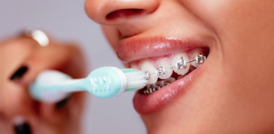 8 вопросов о брекеты к стоматологу
