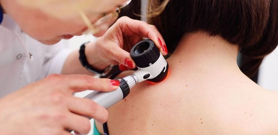 'Советы дерматолога: как избавиться от новообразований на коже?'