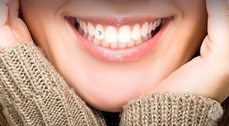 Джулія, стоматологія - Прикраси зубів
