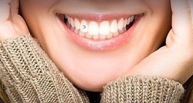 Джулия, стоматология - Украшения зубов