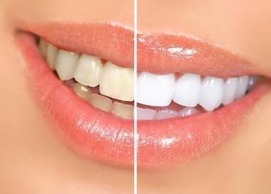 Джулия, стоматология - Комплексная чистка зубов