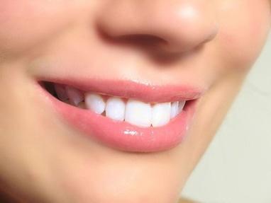 Джулия, стоматология - Установка импланта