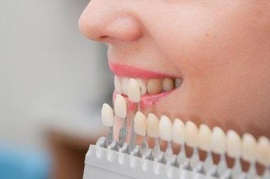 Джулия, стоматология - Виниры