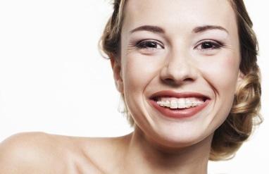 Сучасна Сімейна Стоматологія - Несъемные комбинированные ортодонтические аппараты – брекеты системы одна челюсть лигатурные (сапфировые, прозрачные)