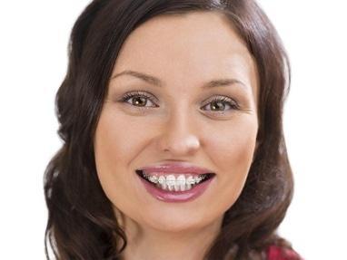 Сучасна Сімейна Стоматологія - Несъемные ортодонтические аппараты – брекеты системы одна челюсть лигатурные (керамические, белые)