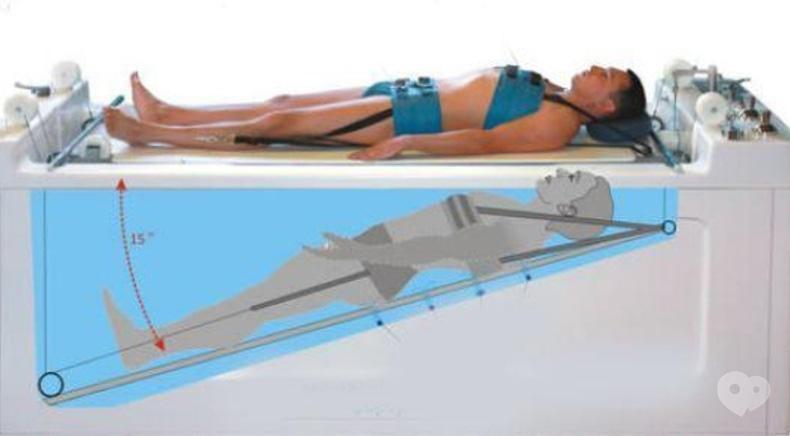 Вільний рух, медицинский центр - Подводное вытяжение позвоночника, суставов