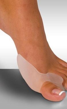 Вільний рух, медичний центр - Лікування і корекція плоскостопості та вальгусної деформації стопи ('шишки' на кісточці великого пальця ноги)