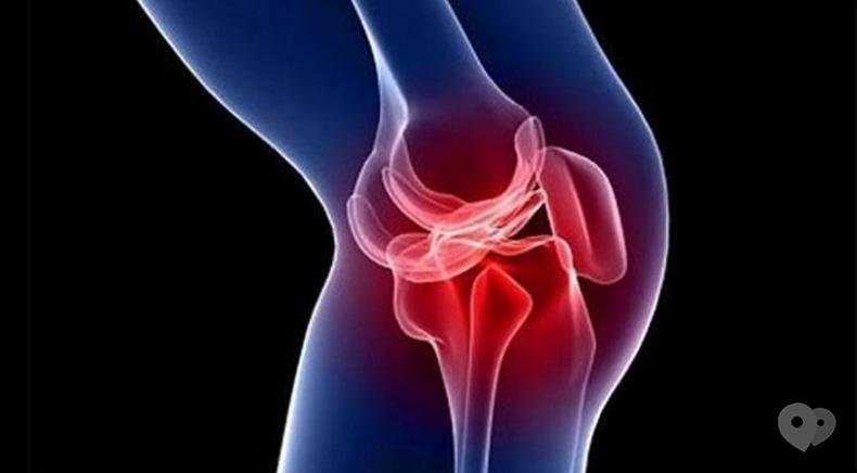 Вільний рух, медицинский центр - Лечение крупных суставов, пяточной шпоры