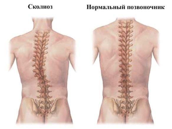 Вільний рух, медицинский центр - Лечение и профилактика сколиозов,  и других нарушений осанки
