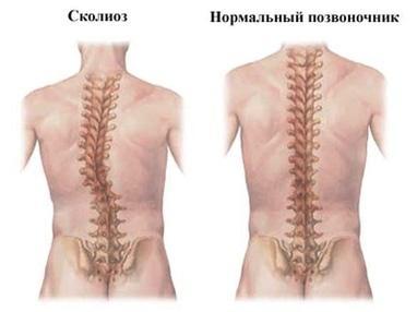 Вільний рух, медичний центр - Лікування і профілактика сколіозів, та інших порушень постави