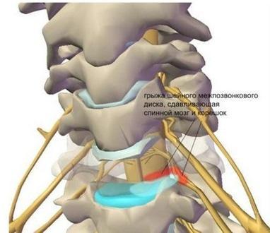 Вільний рух, медичний центр - Лікування синдрому хребетної артерії (запаморочення і частий головний біль)