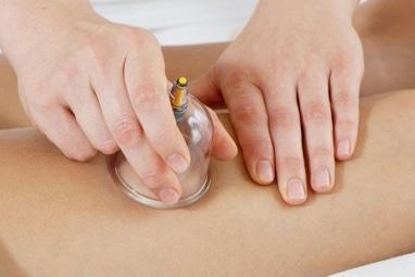 Медичний центр Євмінова, лікування і профілактика захворювань хребта, УЗД кабінет - Баночний масаж