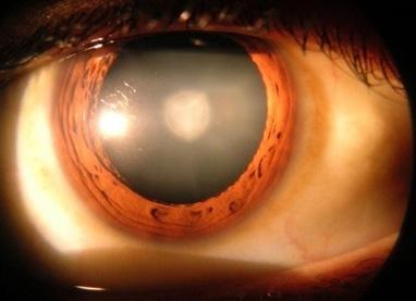 Новий Зір, офтальмологічний центр - Імплантація пристрою EX-press