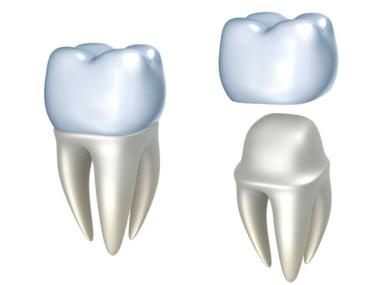 Джулия, стоматология - Металлокерамическая коронка