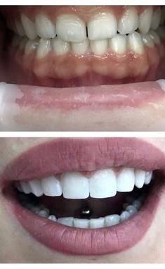 Сучасна Сімейна Стоматологія - Художня реставрація