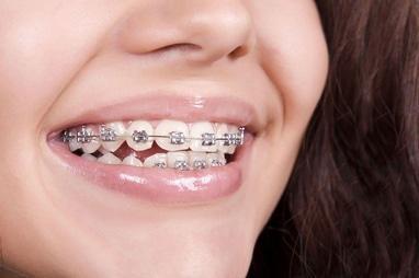 Сучасна Сімейна Стоматологія - Активация несъемного ортодонтического аппарата (каждые 4 недели) одна челюсть – смена дуги металлические брекеты