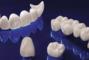 Сучасна Сімейна Стоматологія - Металлокерамика
