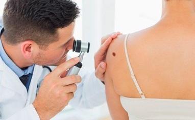 Авіцена, медичний центр - Діагностика новоутворень шкіри