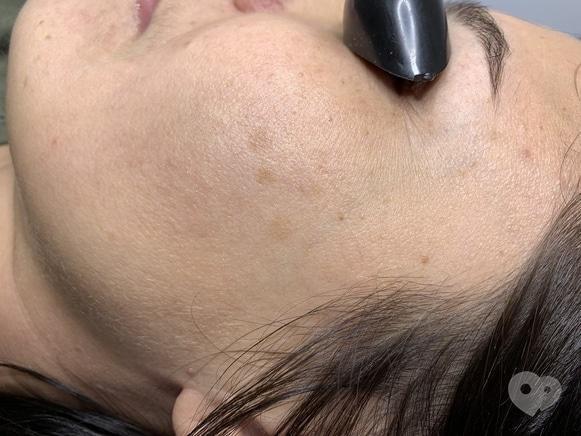 Фото 1 - Celebriti, центр лазерної косметології та корекції фігури - Лазерне видалення пігменту