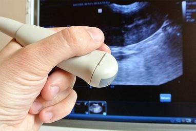 ЄВРОМЕД, медичний центр - Трансректальне ультразвукове дослідження передміхурової залози