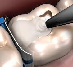 Стомадеус, стоматологічна клініка - Тимчасова пломба