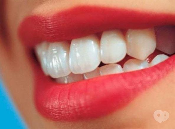 Стомадеус, стоматологическая клиника - Реставрация