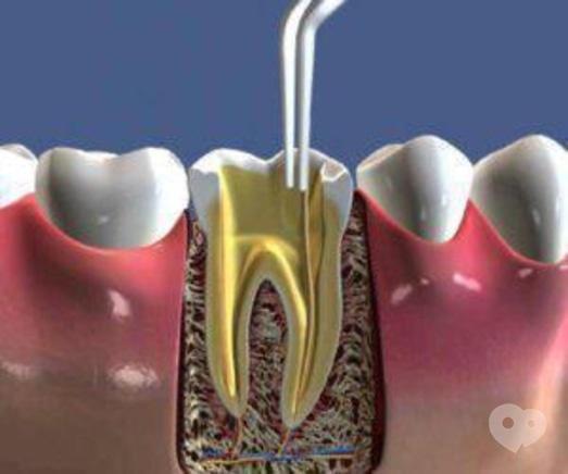 Стомадеус, стоматологічна клініка - Тимчасове пломбування кореневих каналів