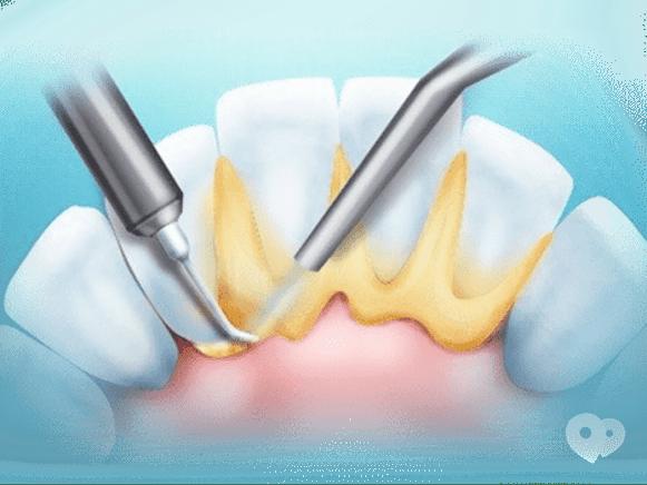 Стомадеус, стоматологическая клиника - Снятие зубных отложений