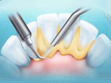 Стомадеус, стоматологічна клініка - Зняття зубних відкладень