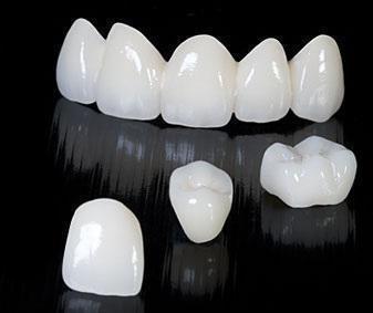 Стомадеус, стоматологічна клініка - Металокерамічна коронка