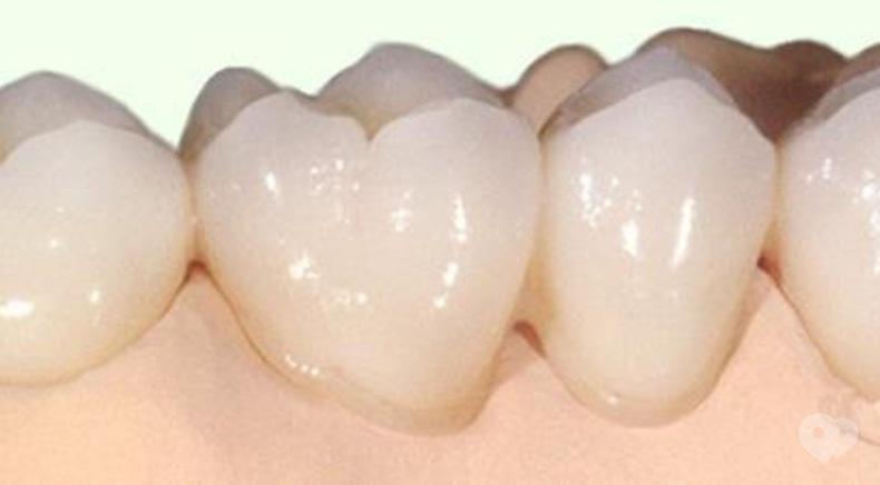 Стомадеус, стоматологическая клиника - Цельнокерамическая коронка на оксиде циркония
