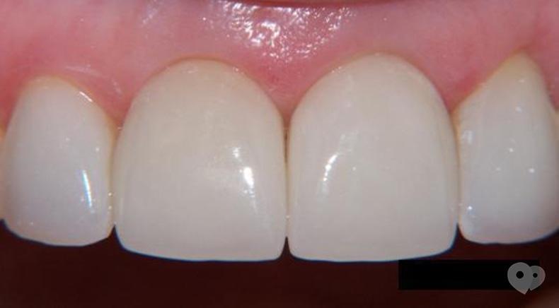 Стомадеус, стоматологическая клиника - Цельнокерамическая прессованная коронка