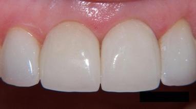 Стомадеус, стоматологічна клініка - Цільнокерамічна пресована коронка