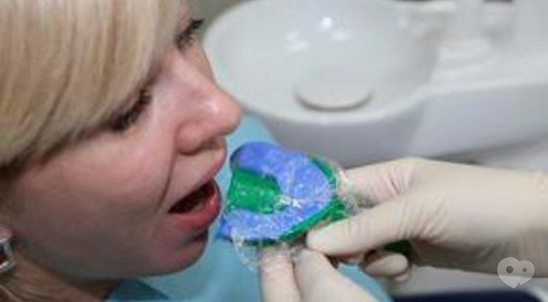 Стомадеус, стоматологическая клиника - Снятие отпечатков