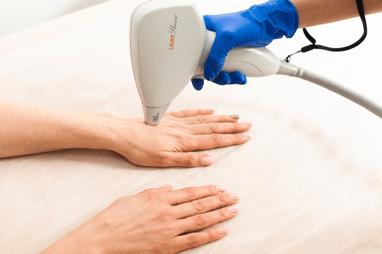 Celebriti, центр лазерної косметології та корекції фігури - Лазерна епіляція зони рук