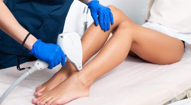 Celebriti, центр лазерної косметології та корекції фігури - Лазерна епіляція зони ніг